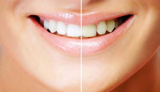 teeth-whitening-page-tsr